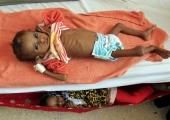 ÜRO: Jeemenis ähvardab näljahäda peagi 12 miljonit inimest