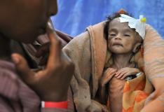 ÜRO: 17 riigis nälgib sisetülide tõttu 56 miljonit inimest