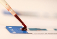 Testimisnädal kutsub HIV-testi tegema