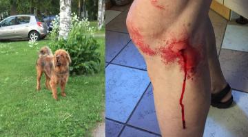Mupo palub abi: Pirita-Viimsi kandis liigub ohtlik, inimesi ründav koer