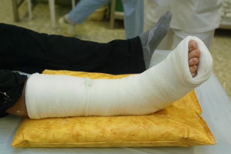 Joobespäi roolist tabatud naine süüdistab politseid jala murdmises