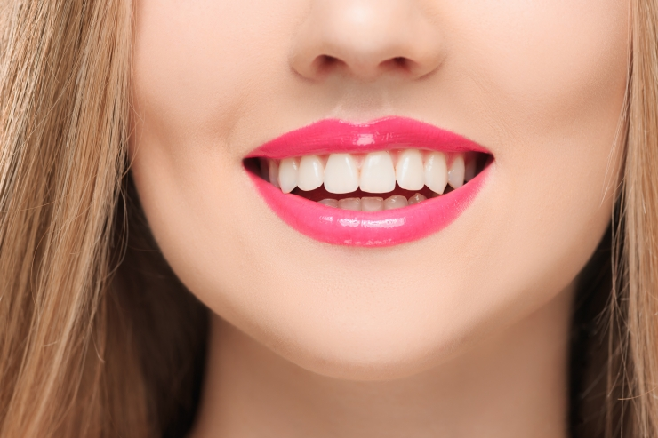 NAERATUS SUULE: Aita vähekindlustatutel hambad korda saada