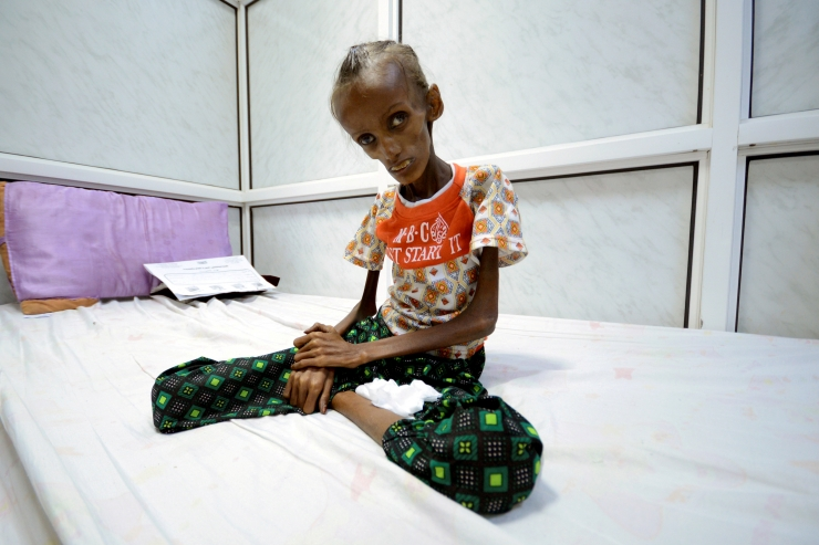 ÜRO hoiatas ulatusliku näljahäda eest Jeemenis