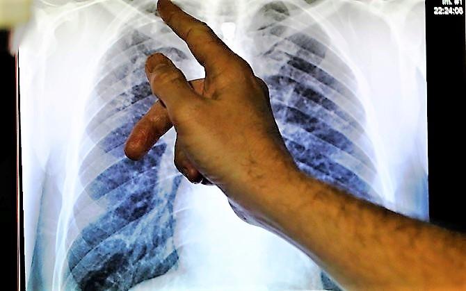 Saaremaal leiti mullu kaheksa tuberkuloosihaiget