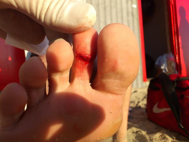 G4S rannavalve: lõhutud klaaspudelid põhjustavad rannalistele lõikehaavu
