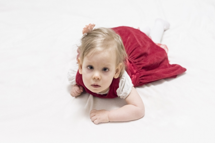Haruldase haigusega laps sai annetajate toel vajalikud kompressioonrõivad